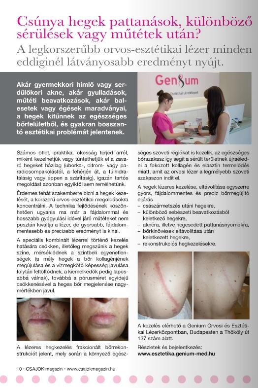 csajok magazin Genium hegek kezelése