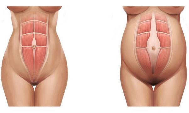 Hasizom erősítő torna terhesség után, Love Your Belly