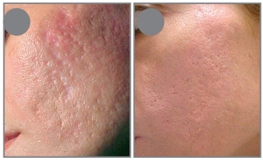 akne kezelése - előtte és utána