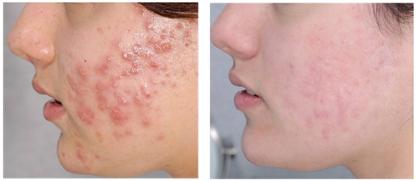 Akne és aknés hegek lézeres kezelése előtt (balra) és után 3 hónappal (jobbra(