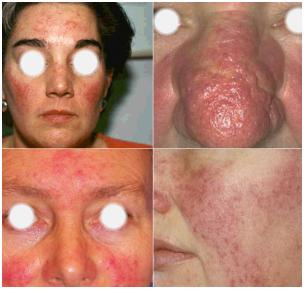 A rosacea összes tünete: balra fent a kezdeti stádium, jobbra fent a kötőszövetesen átépült bőr, mint utolsó stádium