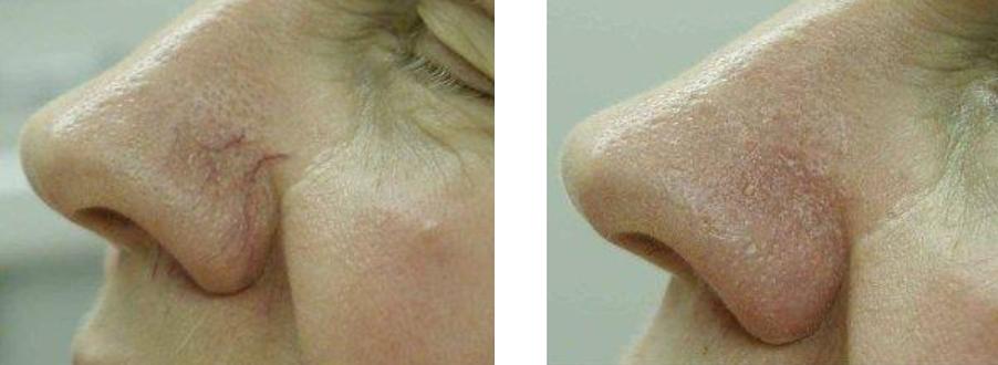 Seprűvénák a orron