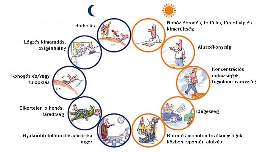 Éjszakák és nappalok: az alvási apnoe következményei