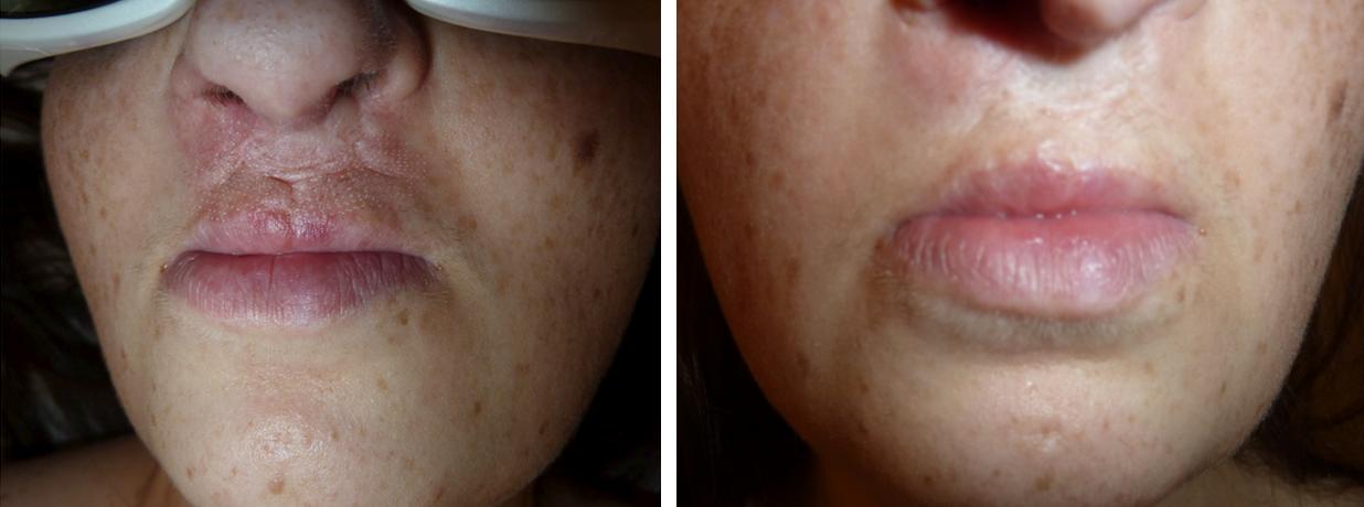 Ajakhasadék Er:Yag lézer kezelés előtt és 1 hónappal később a Genium Orvosi és Esztétikai Lézerközpontban