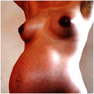 bimbóudvar pigmentáció