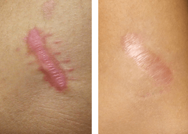 Atrófiás hegek lézeres kezelés előtt és utána 1 hónappal