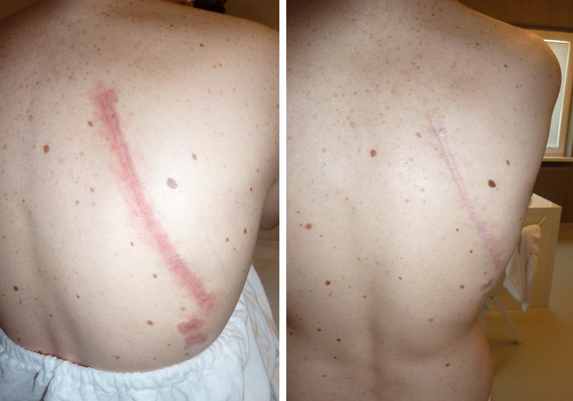 Háton lévő heg Er:Yag és Nd:Yag lézeres kezelés előtt és 1 hónappal később a Genium Orvosi és Esztétikai Lézerközpontban
