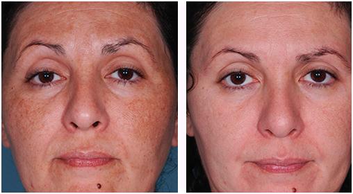lézeres pigmentfolt kezelés előtt, és 25 nappal utána
