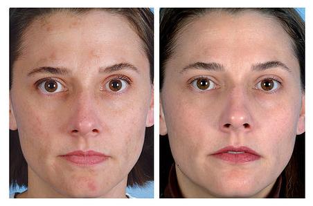 Fotó: lézeres pigmentfolt kezelés előtt, és 25 nappal utána