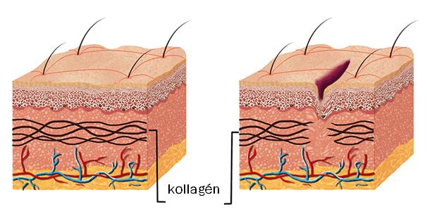 striás bőr
