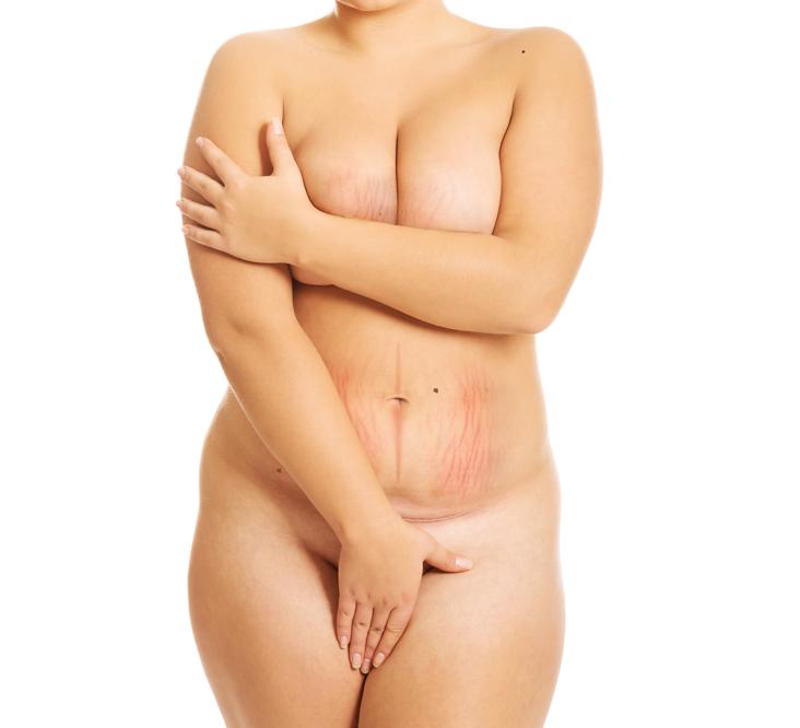 keloid kezelés a fogyás előtt és utáng
