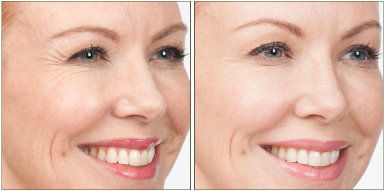 Botox kezelés előtt és után