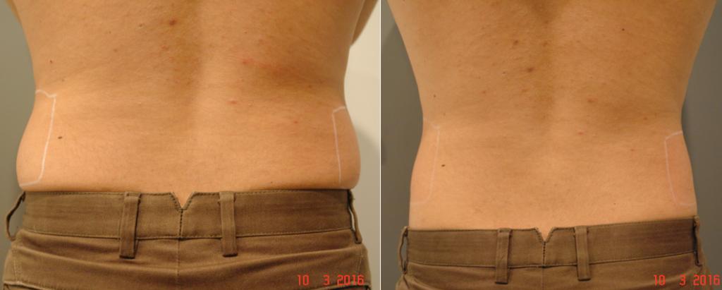 A Skin Cancer & Cosmetic Clinic Sydney-ben 2016 óta végez TightSculpting kezeléseket. Az eredményeik ugyancsak önmagukért beszélnek.