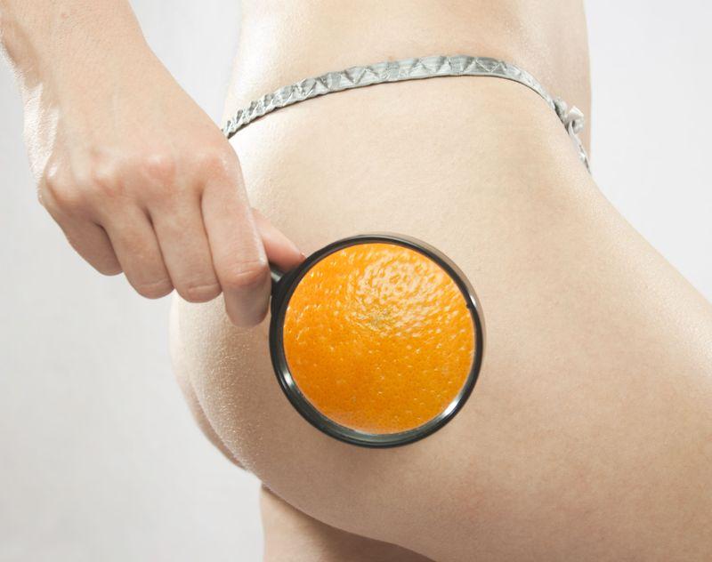 narancsbőr combon